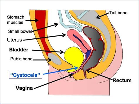 can prolapsed bladder cause vaginal spotting picture 3