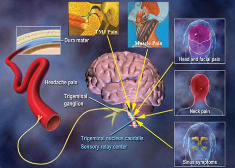 tooth pain nerve inflammation picture 11