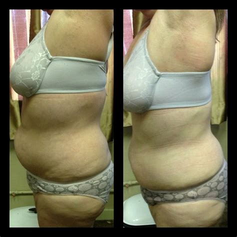 weight loss body wraps pasco florida picture 3