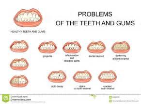 oral gum health picture 17