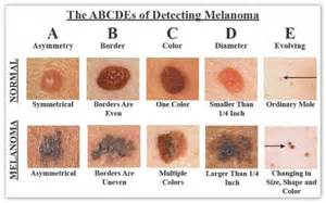 national skin cancer prevention month picture 9