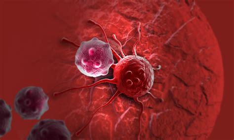 colon cancer symtoms picture 3