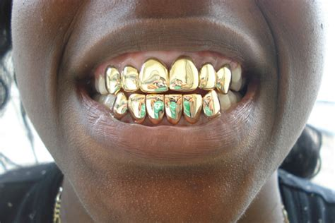 blue teeth grill picture 5