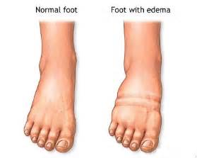 no appe e weight loss swollen foot are symptoms of picture 6