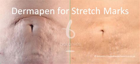 derma pen before and after stretch mark picture 2