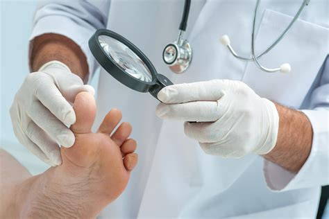 fungus under toe nails picture 13