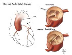 erectile dysfunction and aortic heart valve picture 7