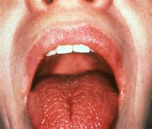 causes of severe dry lips picture 13