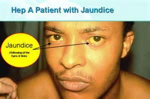 jaundice in liver cirrhosis treatment picture 5