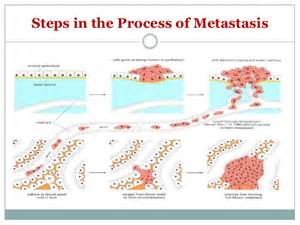 mis-diagnosis of metastatic liver cancer picture 17