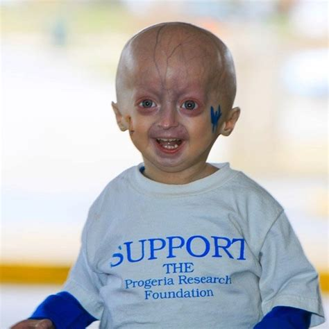 accelerated aging progeria syndrome picture 10