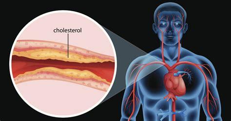 High blood pressure alternative picture 1