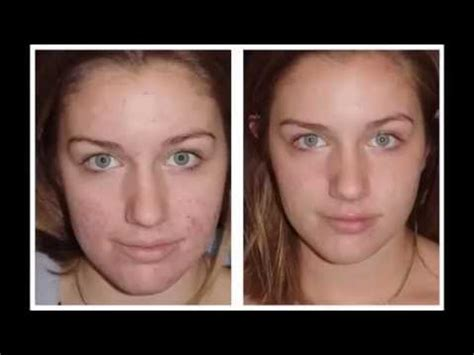 how to get rid of acne picture 7