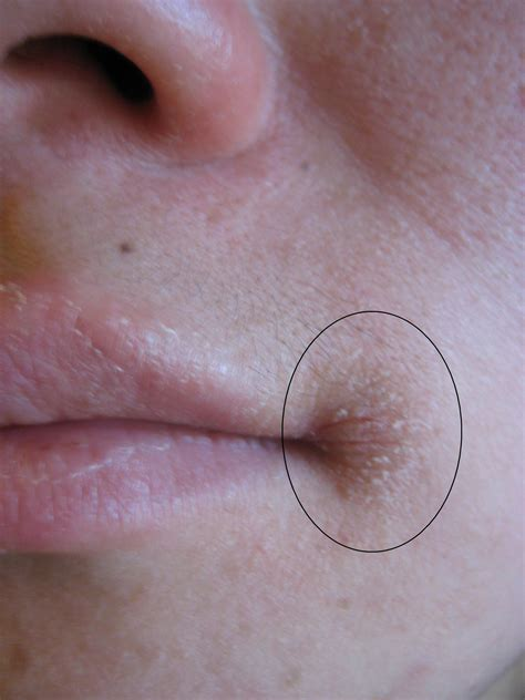 how to heal the worst chapped lips picture 11