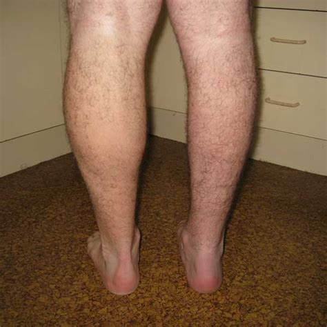 stretch marks up your legs picture 5