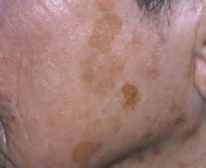 liver problems red spots on skin picture 3