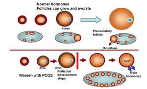 masturin and pregnancy pcos treatment picture 7