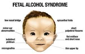 women's health alcohol detoxification in pregnancy picture 6