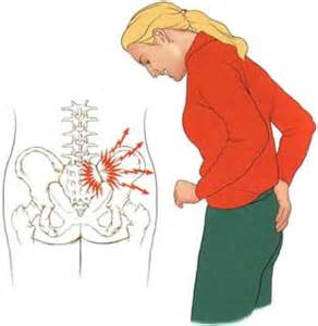 s.i. joint dysfunction. picture 6