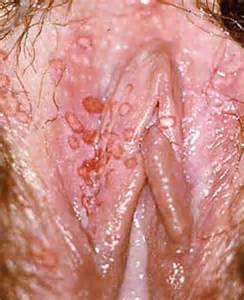 pics of herpes on vagina picture 2
