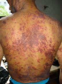 when do herpes symptoms appear picture 9