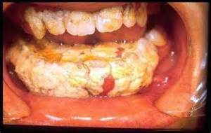 teeth bother me after scaling and root planing picture 3