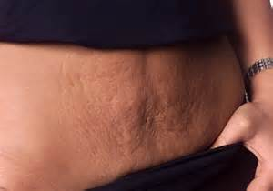 stretch marks moms pictures picture 1