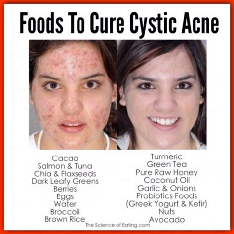 food cures for acne picture 10