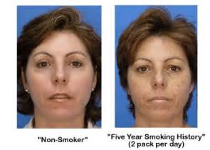 effects of smoking on your skin picture 6