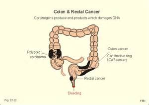 colon cancer bleeding picture 5