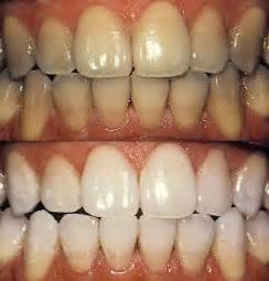 whiten teeth with strawberry picture 10