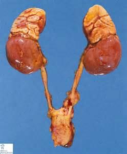 adrenal gland picture 1