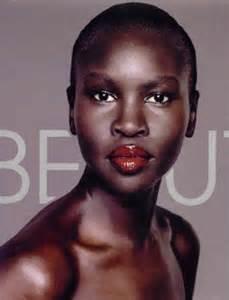 dark skin pigment picture 14