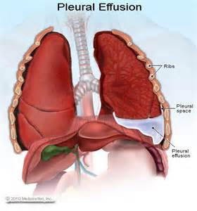 natural remedies for pleural effusion picture 2