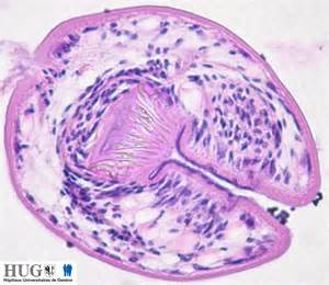 parasites liver cyst picture 2