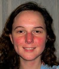 rosacea on nose picture 3