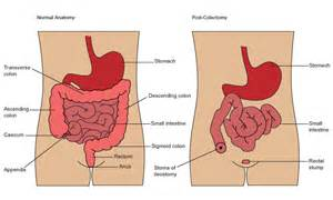 colon and surgeons picture 3