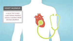 heart murmur chest pain thyroid picture 1