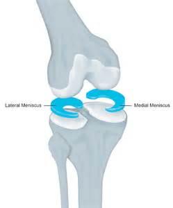 collagen meniscus implant picture 6