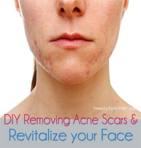 get rid of deep acne scars picture 3