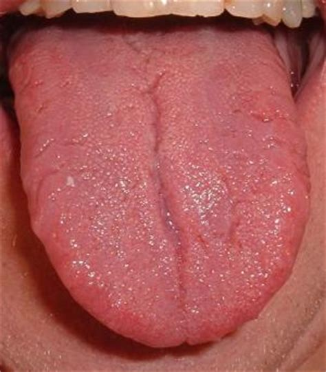 chinese medicine for warts picture 19