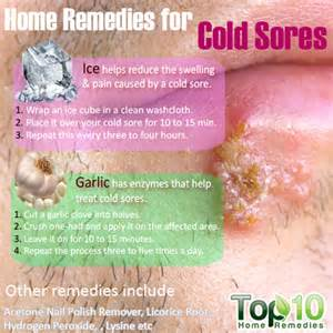 herpes cold sore contagious picture 7