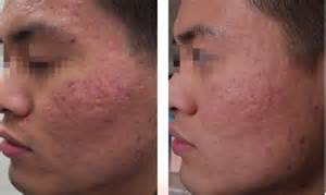 stretch mark cream face lift picture 1