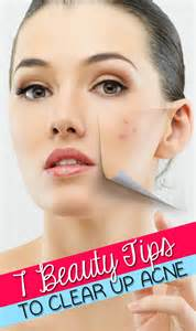 tips to clear up acne picture 1