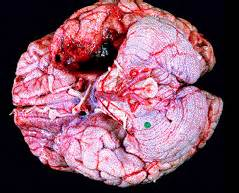 herpes simplex virus in the brain picture 2