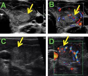 heterogenous diffusely enlarged thyroid gland on ultrasound picture 4
