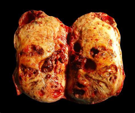 colon tumor picture 14