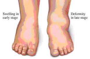 muscle cramps in hands and feet picture 7