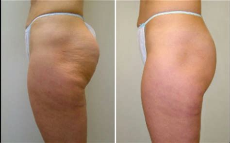 cellulite heat works picture 2