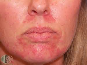 itchy dry skin around mouth picture 2